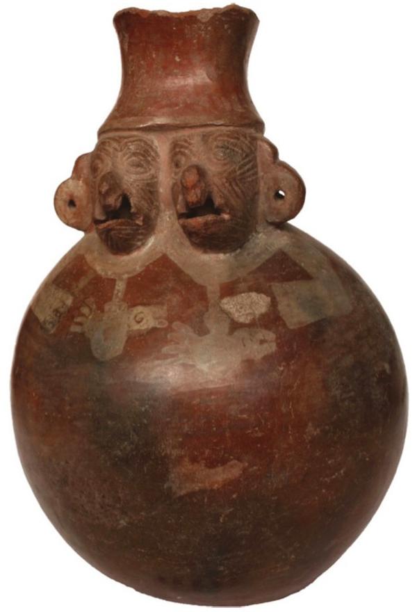 Vasija retrato de la cultura Chimú que posiblemente representa a gemelos siameses con duplicación craneofacial y labioleporina y paladar hendido bilateral. Fuente: Pachajoa, H. et al. (2014).